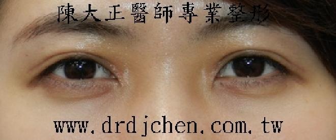 【台视新闻】陈大正医师驳催眠